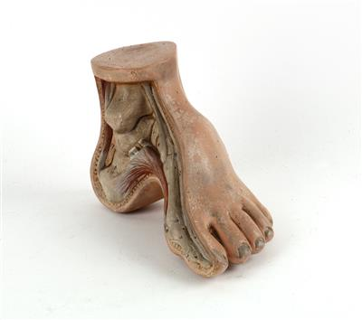 A c. 1900 Human foot disorder Model - Antique Scientific Instruments, Globes and Cameras